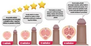 Jak fungují naše metody na zlepšení erekce