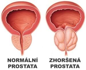 Ukázka normální a zhoršené prostaty